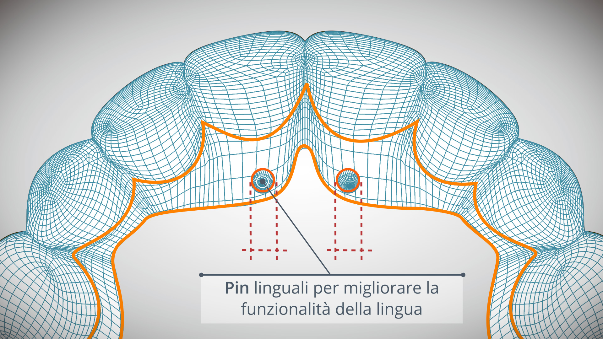pin linguali
